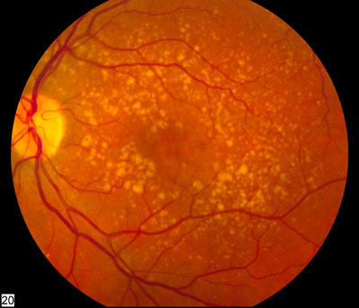 Macular Degeneration Month