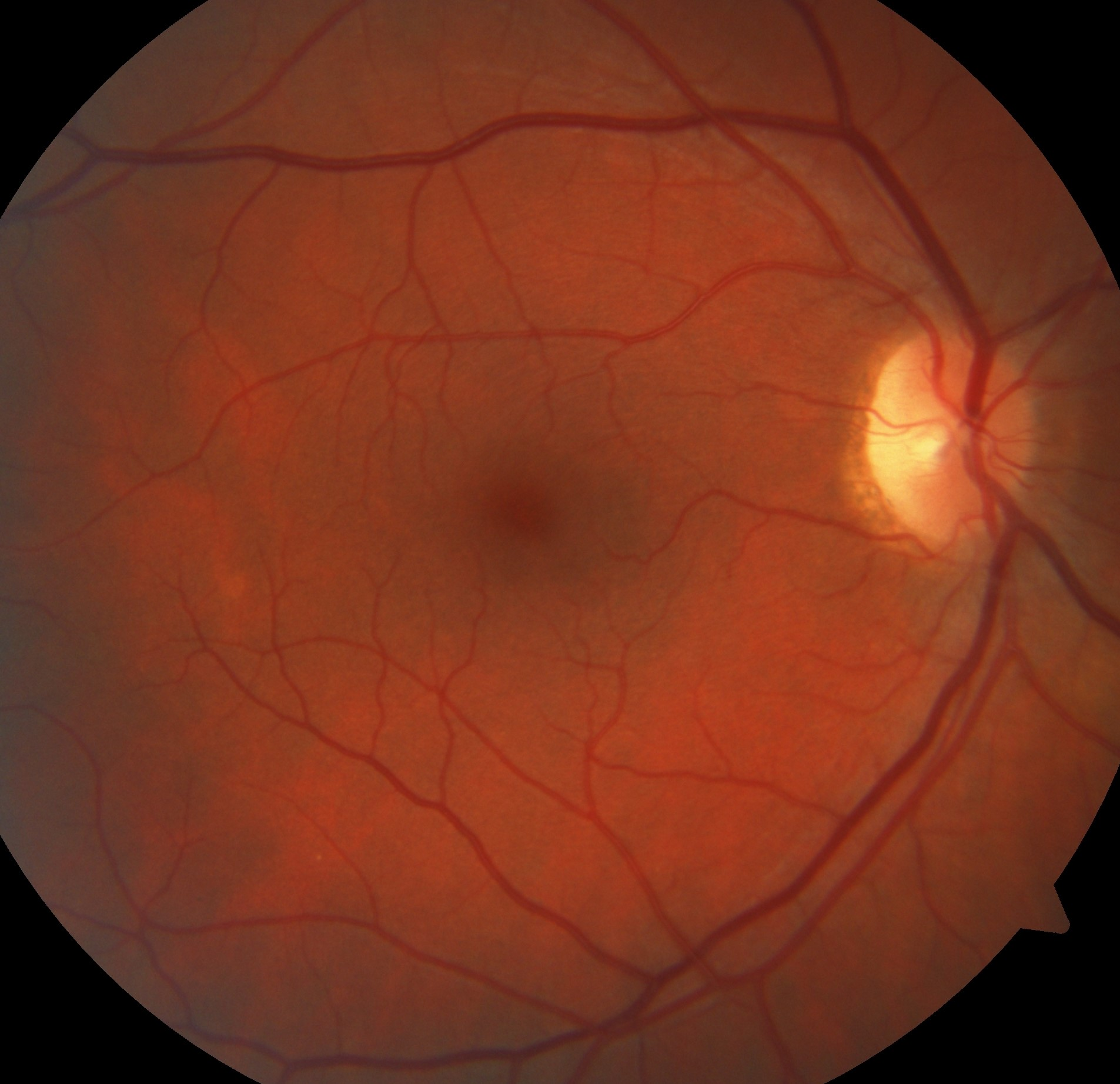 Retinal Imaging for Brain Disease