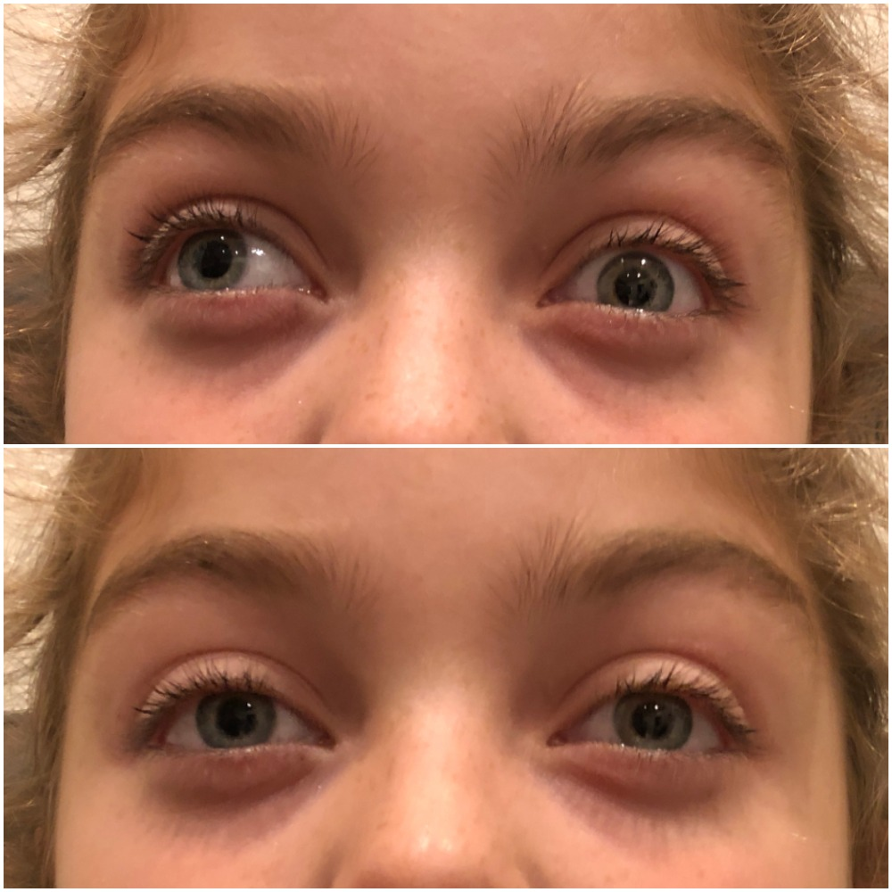 Non-Surgical Correction of Exotropia